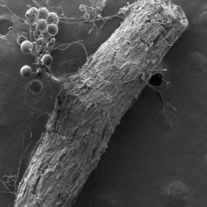 The Weird and Wonderful World of Fungal Symbiosis
